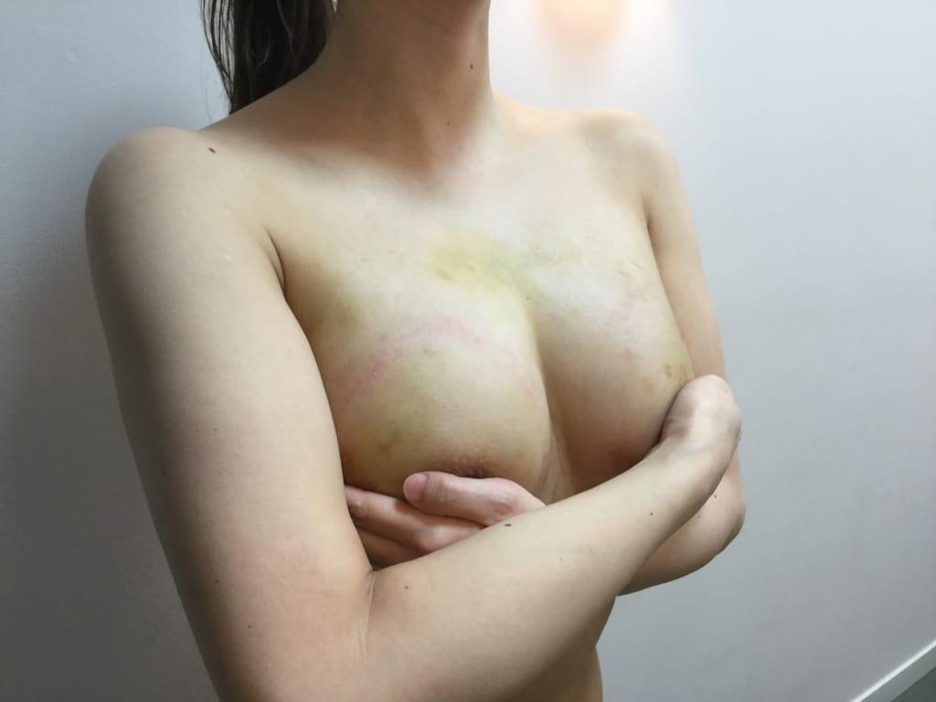 BRAVA×コンデンスリッチ豊胸:理想的な大きさで自然な胸