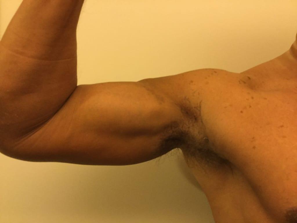 VASER 4D たくましい上腕(二の腕):術後1週間