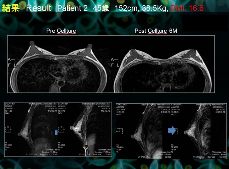 セルチャー豊胸:ありえへん(素晴らしい)術後MRI画像