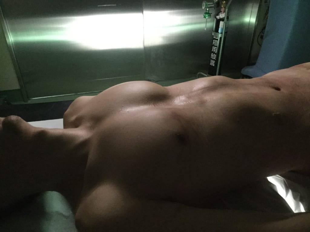 たった一日でこの変化:男性のVASER4Dシックスパック 大胸筋も増強して男らしく!