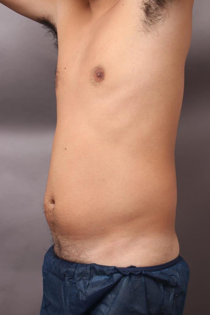 VASER4Dシックスパック術後 ポッコリお腹が4ヶ月で筋肉美に!