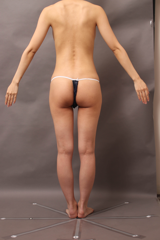 CRF豊胸:せっかくなら綺麗なラインで脂肪吸引(脂肪採取)