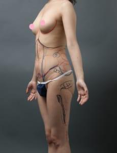 腹部 4Dリポ