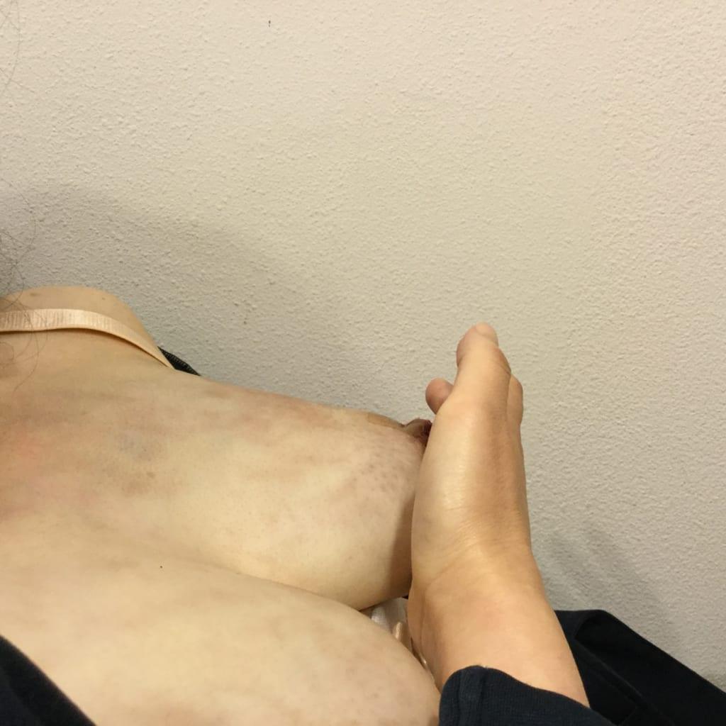シリコンバッグで変形した胸を自然で柔らかい胸に:術後自分の胸を触って嬉し涙
