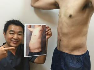 脂肪吸引 腹部