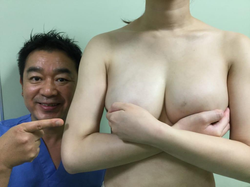 腹部脂肪吸引 crf豊胸