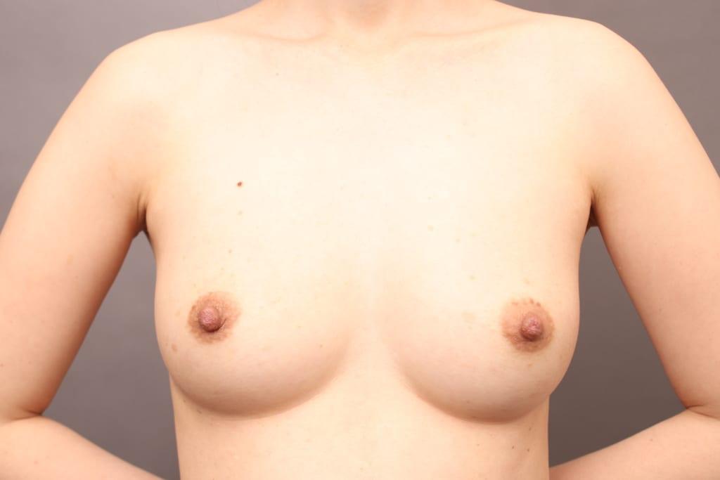 バッグ取り出しと同時のCRF豊胸  術後6ヶ月