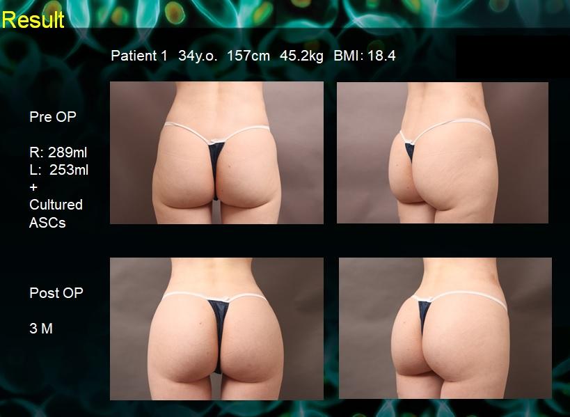 韓国外科学会スライド準備中①:脂肪定着の原理とセルチャー症例