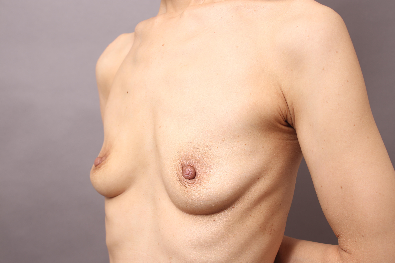 授乳後バストに対するセルチャー豊胸:術前、術中、術直後の写真