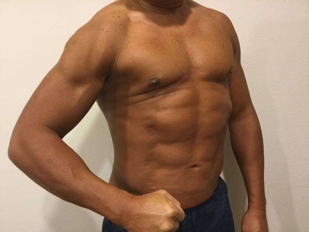55歳でバキバキの肉体:VASER4D  シックスパック+上腕デザイン  術後半年