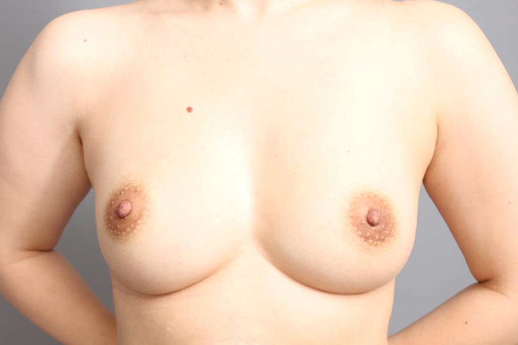 バッグ取り出しと同時の脂肪注入術後6か月:動かない固い胸が自然で柔らかい胸に