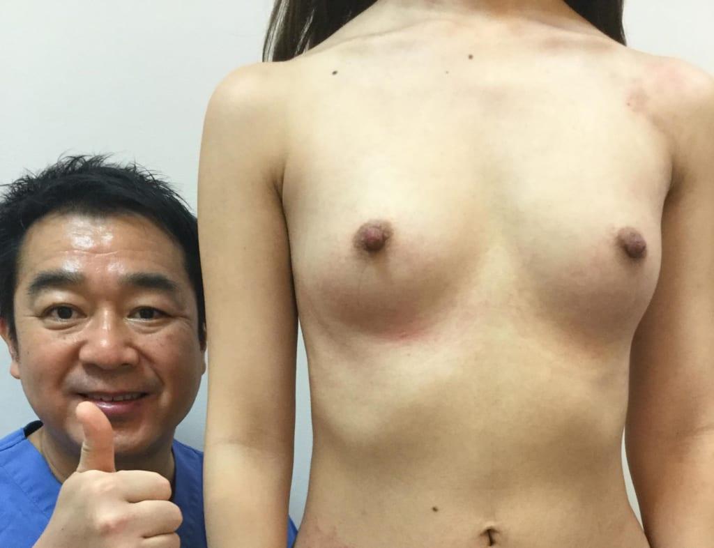脂肪注入豊胸(CRF豊胸)BRAVA併用の魅力