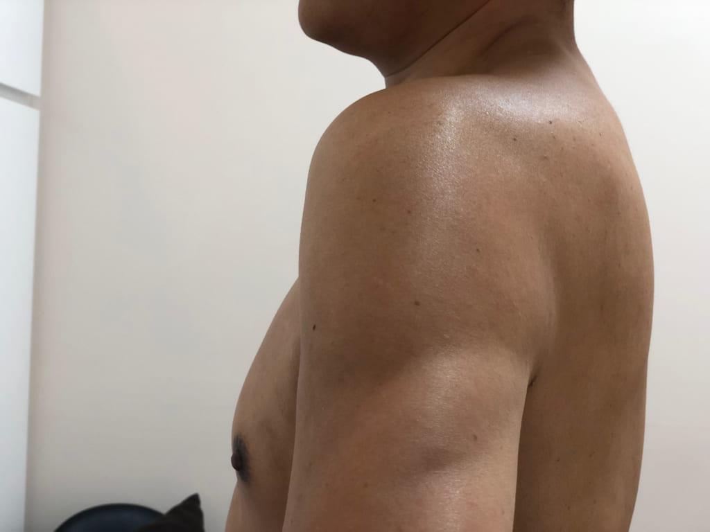 48歳男性:VASER4D術後1年:明らかに若々しい肉体ですね!