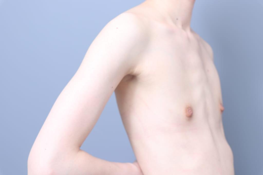 真っ平らな胸を、柔らかい脂肪でバストアップ。新型のBRAVAで皮膚拡張後、脂肪注入