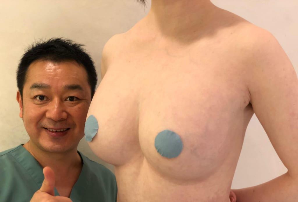 セルチャー豊胸、ビブラ併用CRF豊胸術後6ヶ月後:自然で柔らかい大きなバスト