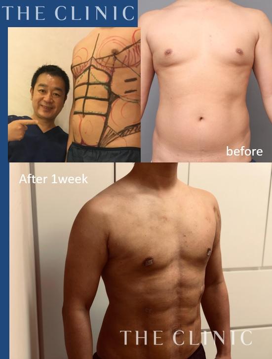 男性の脂肪吸引(ベイザー4D):術後1週間でこの変化