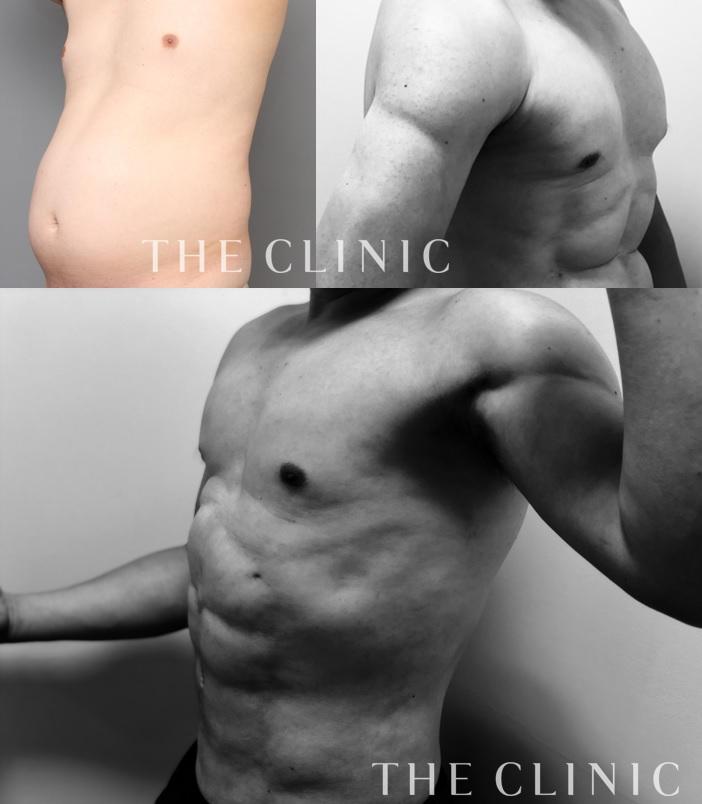 VASER4Dスカルプト:40代男性、術後2か月で自分の体に自信がもてた!