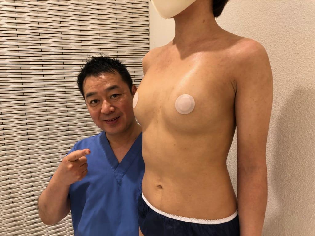コンデンスビブラ豊胸(皮膚拡張器併用CRF豊胸)術後6M フラットなバストが形の良い柔らかいバストに