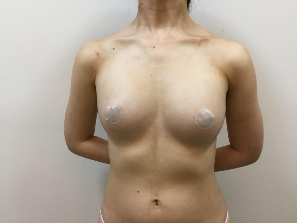 コンデンスビブラ豊胸2回目術後:平坦なバストが、ふくよかで柔らかいバストに