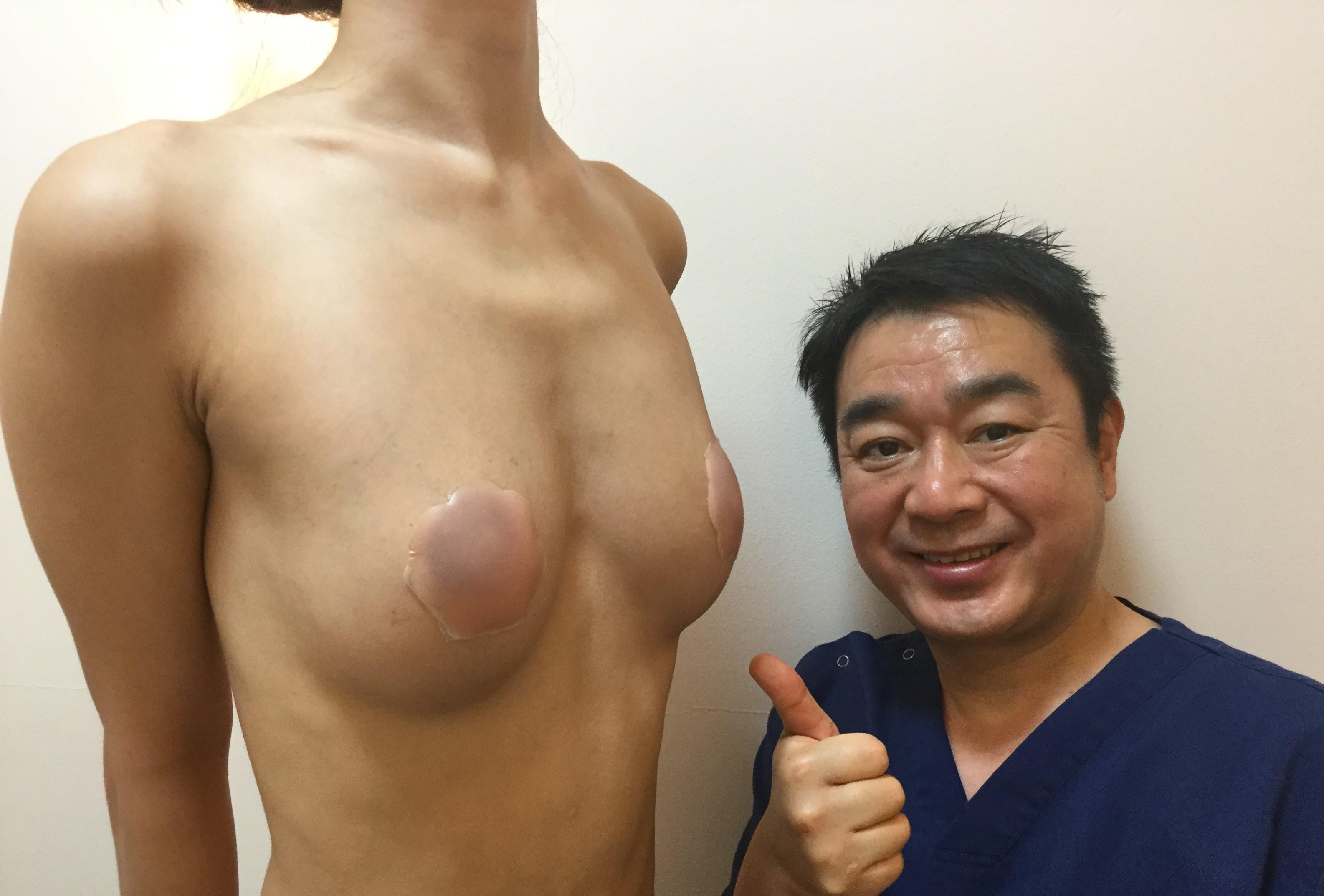 超やせ型:ビブラセルチャー豊胸術後3か月:ガリガリのバストが豊満なバストに