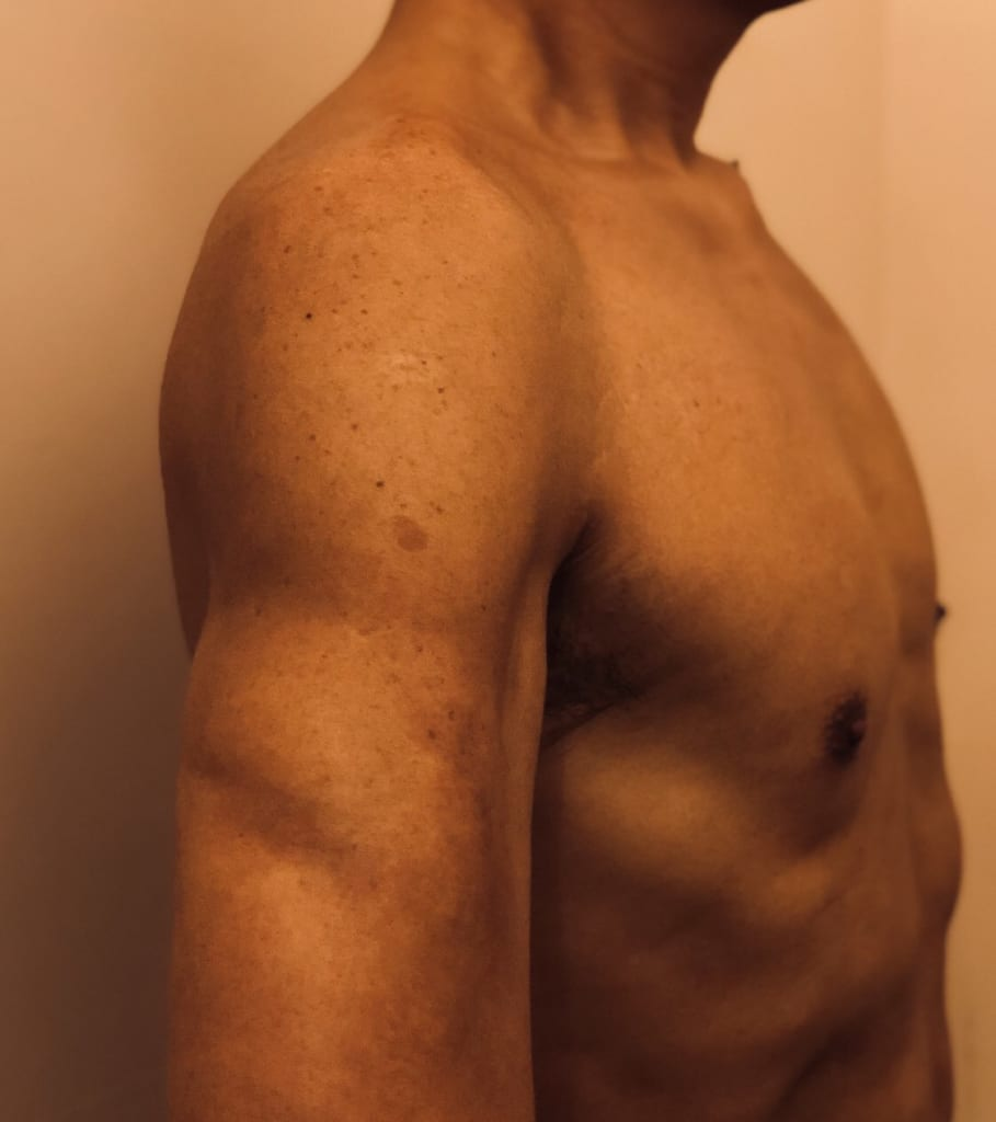 男性VASER4Dシックスパック術後6か月:お腹だけではなく上腕もくっきり