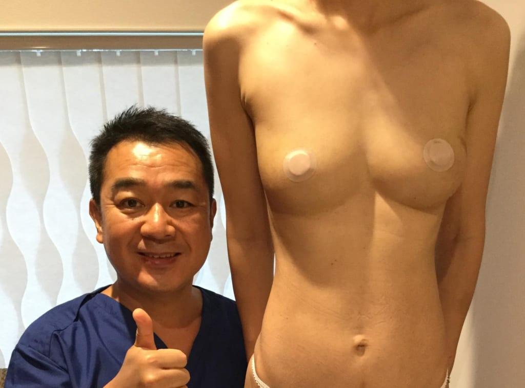 片側漏斗胸:ビブラ併用CRF豊胸で改善  術後6か月