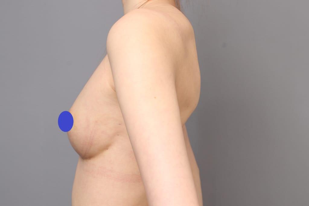 アンダーブーブ豊胸術後1か月:フラットなバストが綺麗な形に