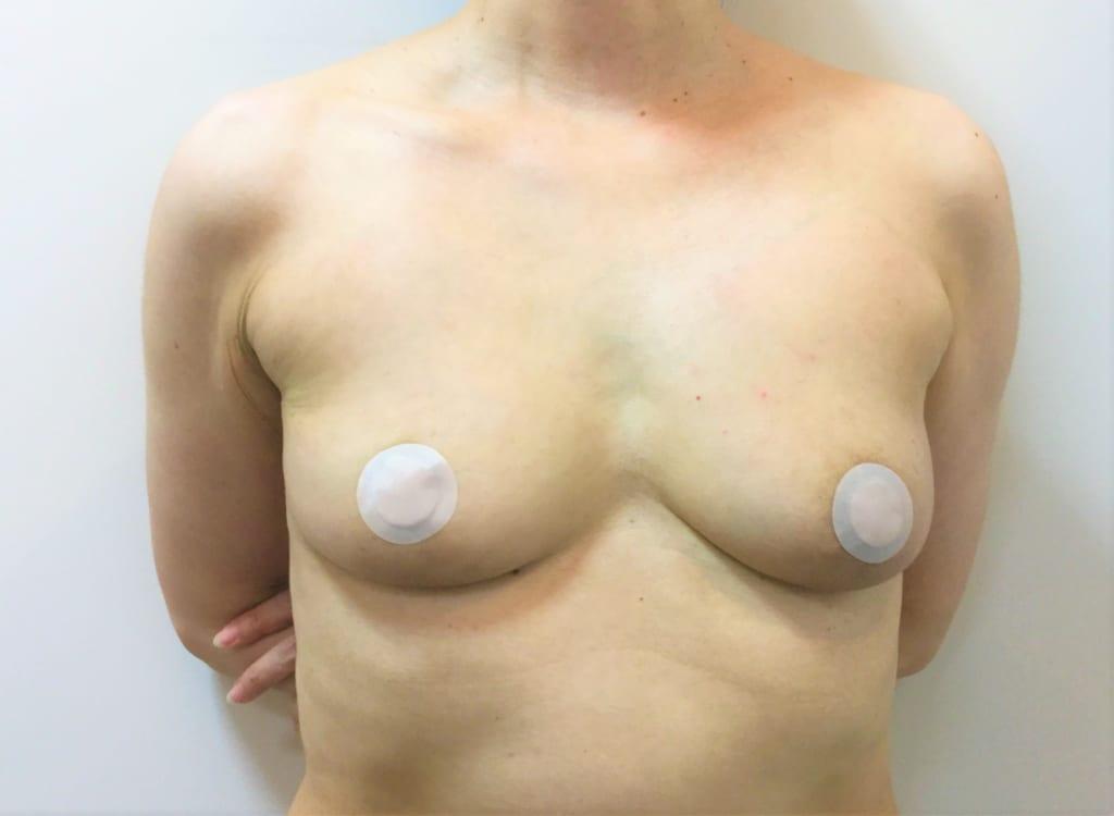 シリコンバッグ取り出し+CRF豊胸:術後1か月:大きさも十分:硬いバストが今は自然で柔らかいバストへ