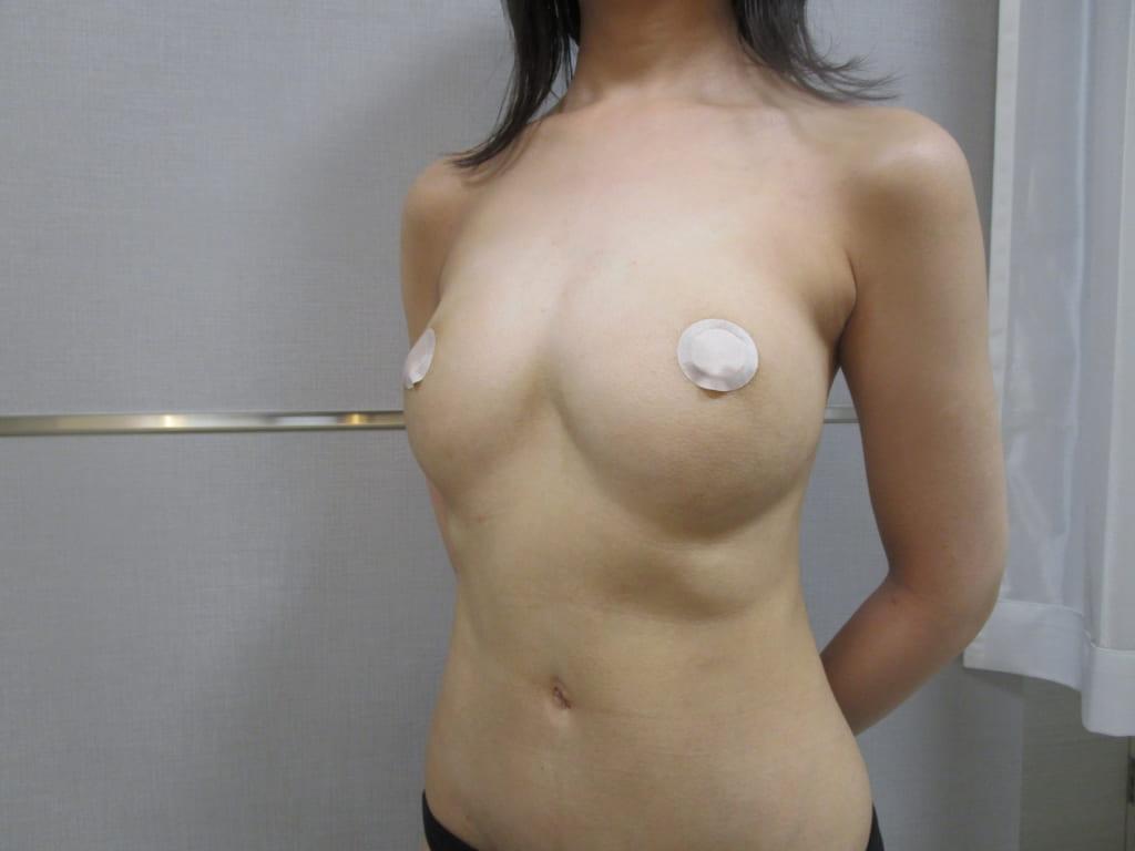 他院脂肪注入豊胸術後のしこり除去+ビブラ豊胸:しこりが消えバストはさらに大きく