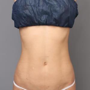 女性4Dリポ:術後約2か月:セクシーなクビレと健康的な腹筋