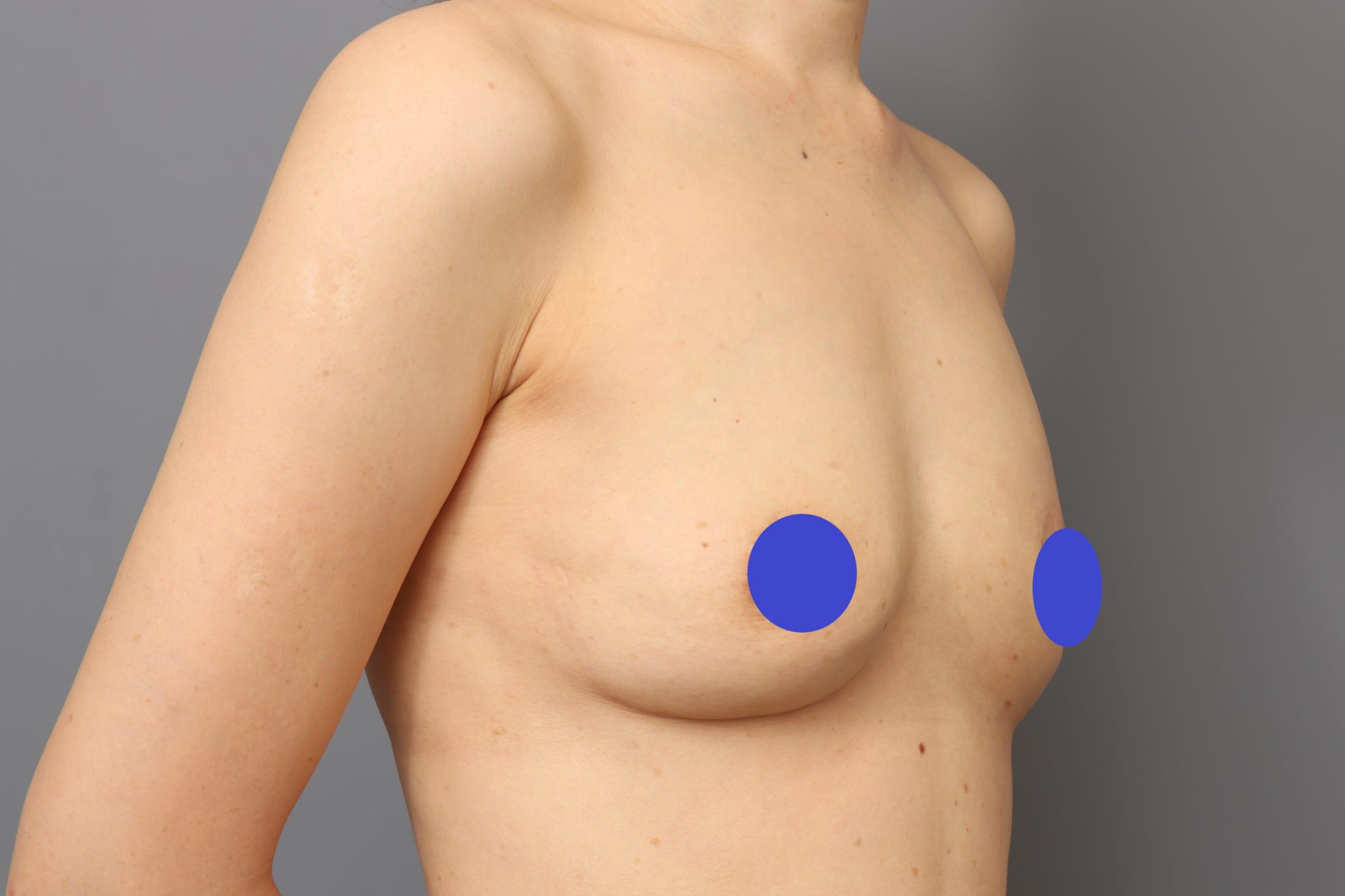 異物除去後:セルチャー×ビブラ豊胸+凍結脂肪注入で再建:術後6か月:異物無しで自然なバストに