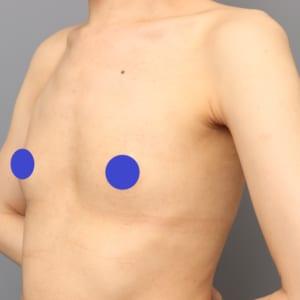 やせ型:セルチャー×CRF豊胸術後6ヶ月:平坦なバストが大きく、そして脂肪採取部位も綺麗に