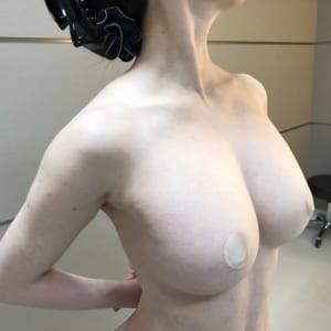 セルチャー×ビブラ×CRF豊胸:術後1年でも大きく綺麗で揺れるバスト