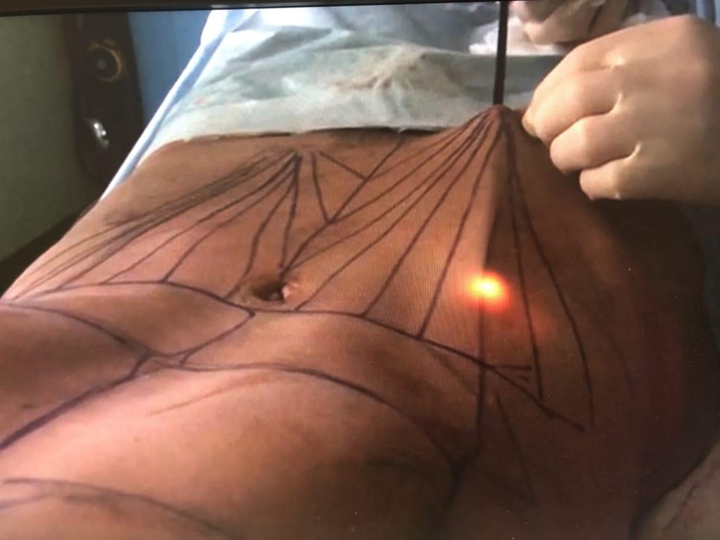 新施術:皮膚収縮  RENUVION(レヌビオン)で腹部のたるみをスッキリ