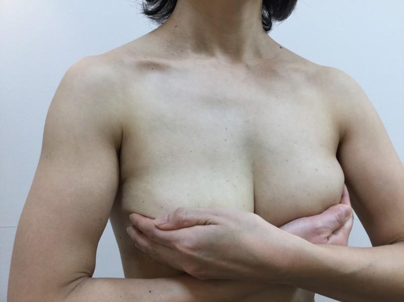 授乳後しぼんだ胸を張りがある胸に:術後6か月