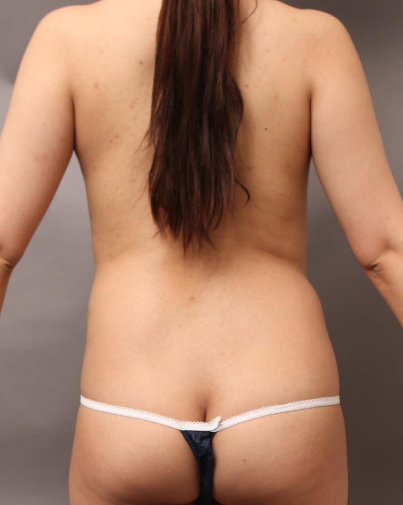 背中の脂肪も豊胸に使えるの?コンプレックスの背中が、後ろ姿美人へ。もちろんバストアップも大満足