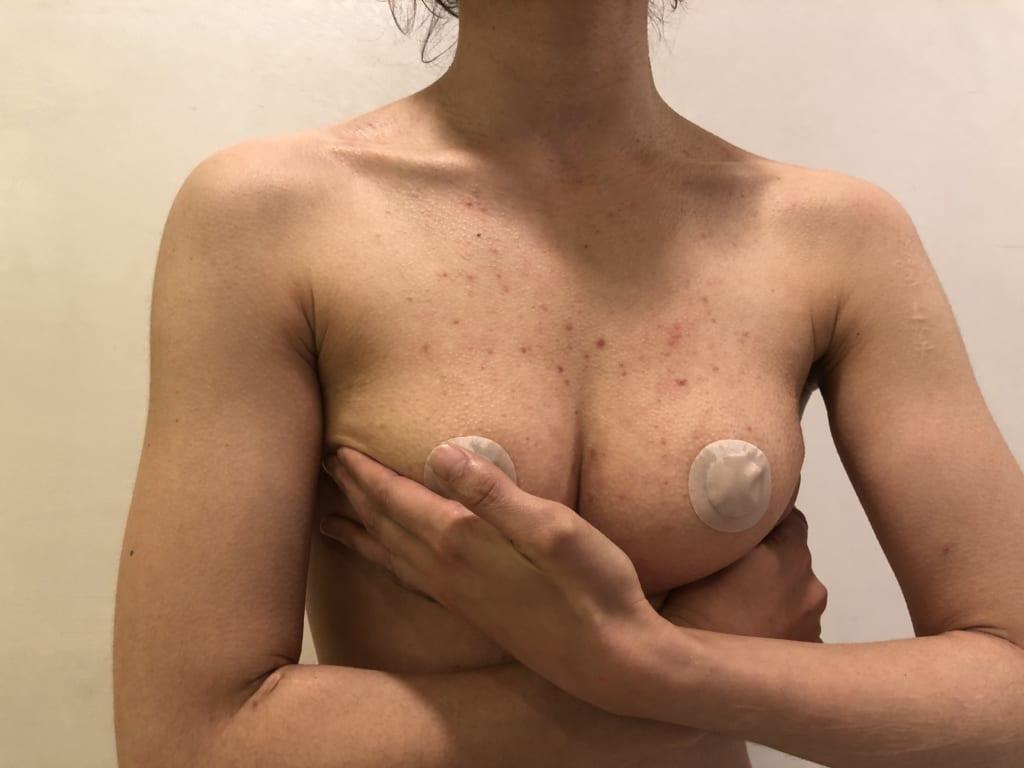 ビブラ×セルチャー×アンダーブーブ豊胸後 術後半年:生まれて初めて谷間が出来ました