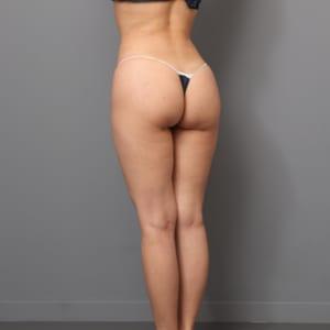 4Dリポ(脂肪吸引+ヒップ注入+腹筋ライン作成)術後1か月:ヒップからウエストにかけての魅力的なライン