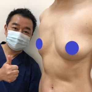 乳がん術後:インプラントで再建後の固いバストを自分の脂肪で置き換え:柔らかく温かい胸に
