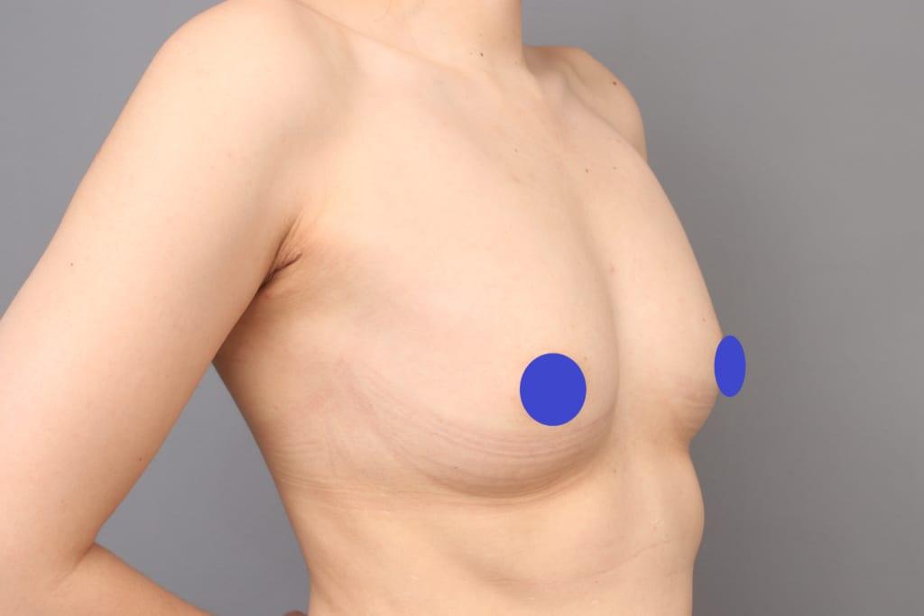 CRF豊胸術後2年:今度は脂肪吸引目的、脂肪がもったいない為2回目の豊胸へ