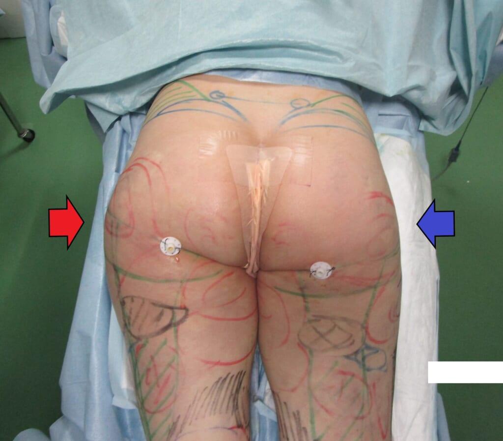 太腿から臀部にかけての強い張り出し:ベイザーとレヌビオン合わせてラインをきれいに。