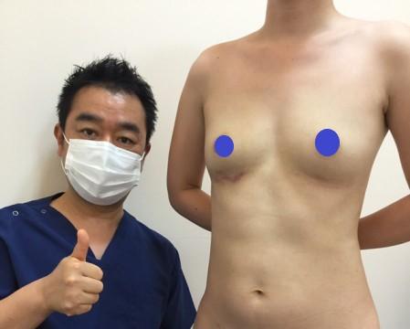 皮膚を破ってシリコンバッグが露出。除去後にビブラ脂肪注入+リゴトミーで乳房再建