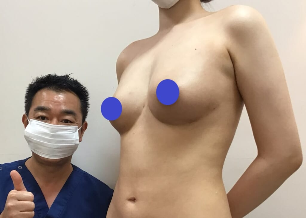 アンダーブーブ豊胸:糸の挿入手術で綺麗な形のバストに変化