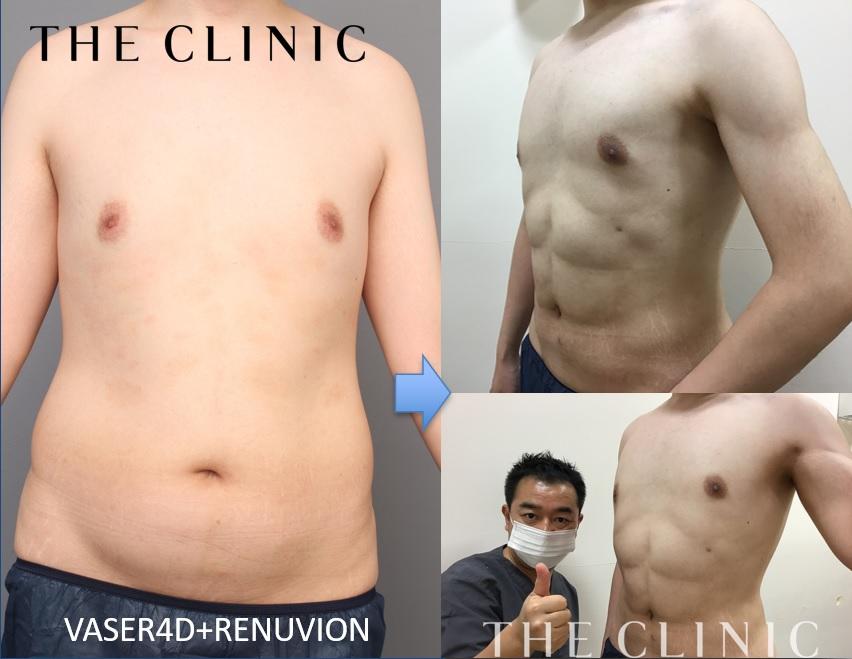 VASER4D+レヌビオン:若い時太っており肉割れあり。術後3か月:ゆるゆるの体がカッコいいシックスパックに