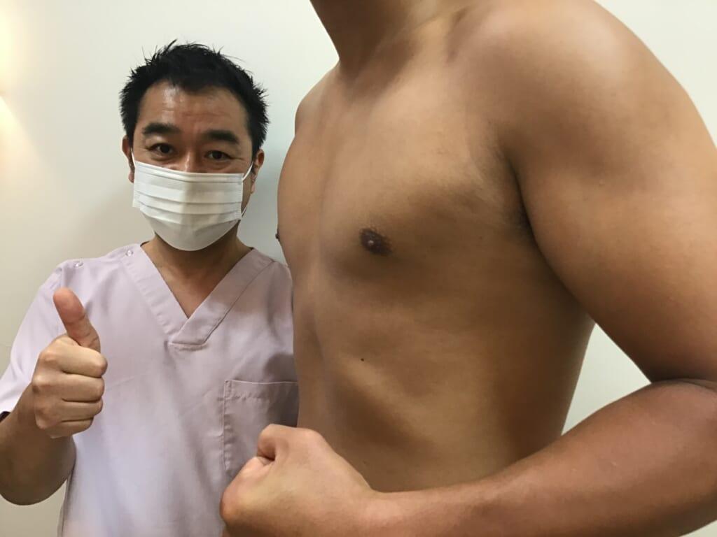 女性化乳房:乳腺切除+ベイザー+パワーX併用の吸引ですっきり:たくましい胸板
