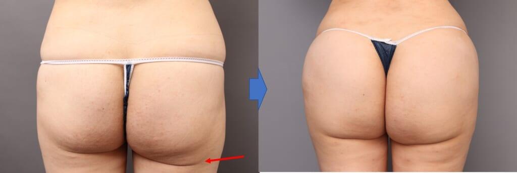ブラジリアンヒップにしたい! 他院修正:臀部と太もも吸引後の下垂修正:レヌビオンと脂肪注入併用