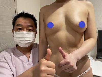 患側の乳房再建+健側豊胸 最終術後3か月